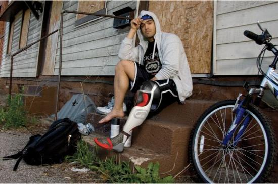 ecko unltd prosthetic leg 01 f2jyn 58