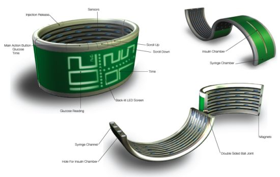 glucom wristband 2