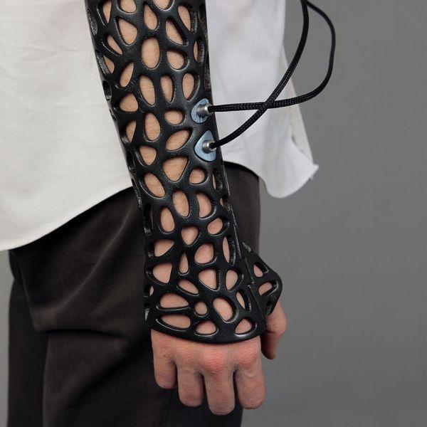 osteoid orthopedics concept
