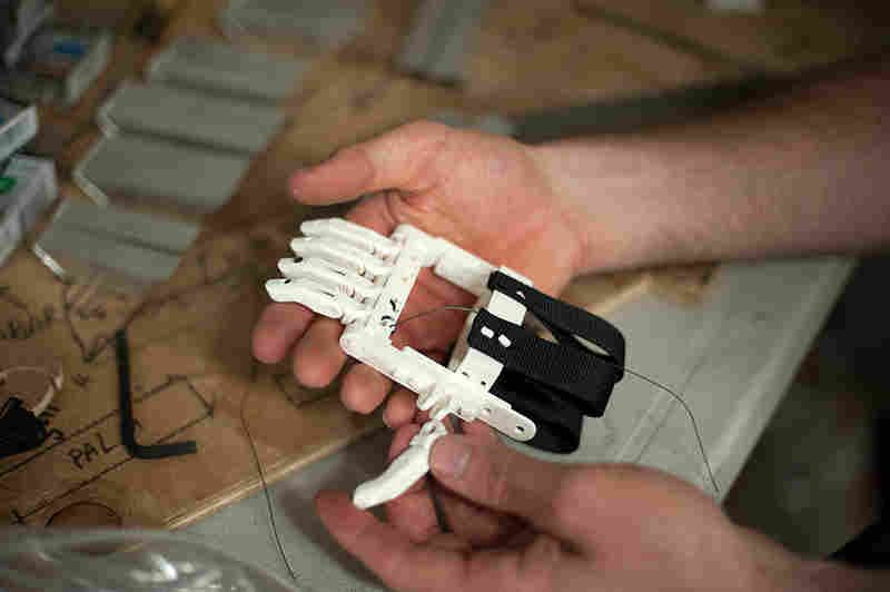Ivan Owen and Richard Van first made a working prosthetic finger